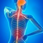 síntomas esclerosis múltiple progresiva